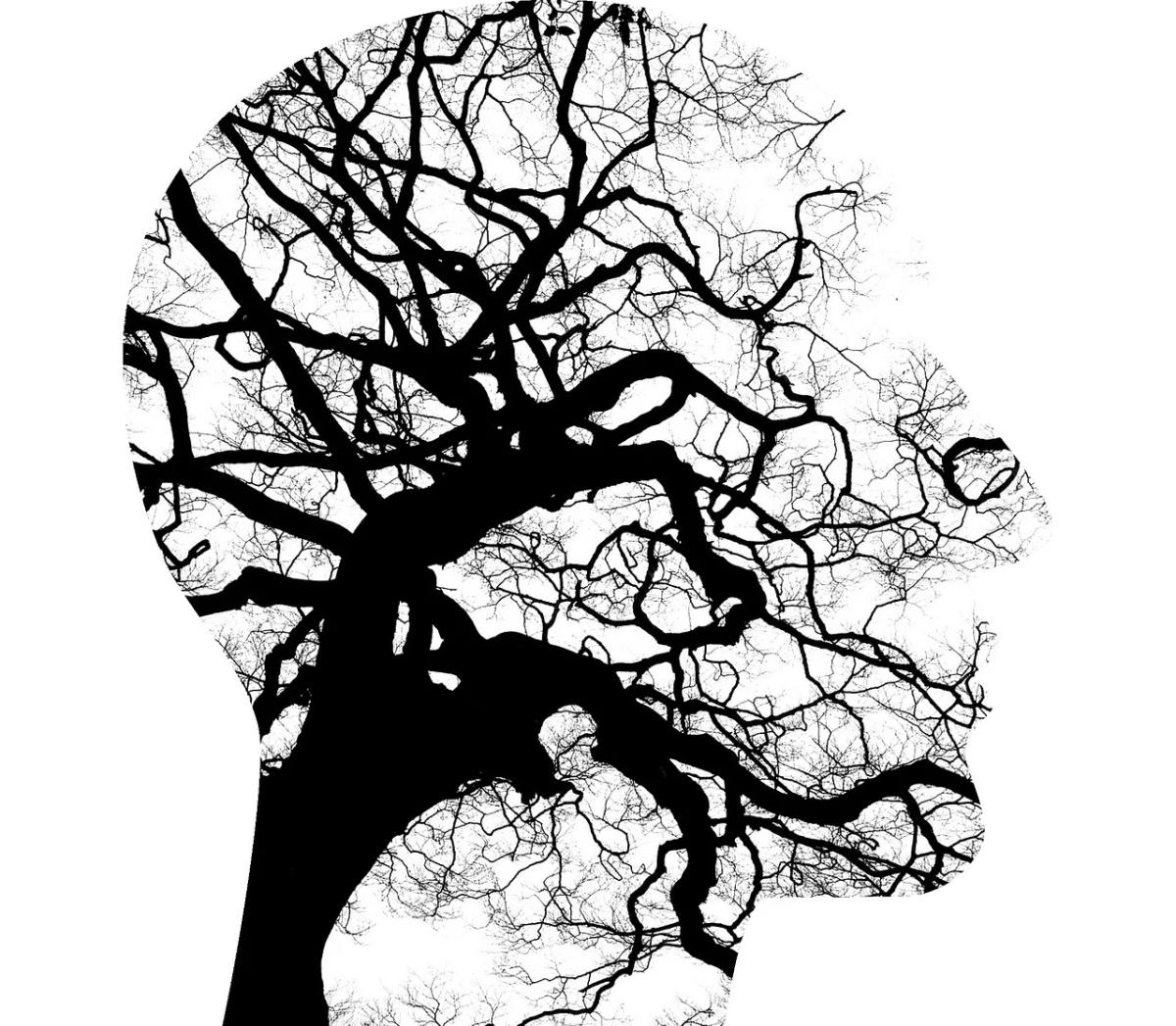 Mental Imagery, Meditation, andBullshit